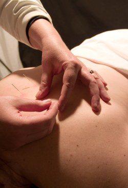 Healing Arts Center LLC   Acupuncture in Branson